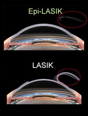 EPI-LASIK