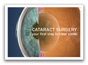 Cataract Surgeons Honolulu