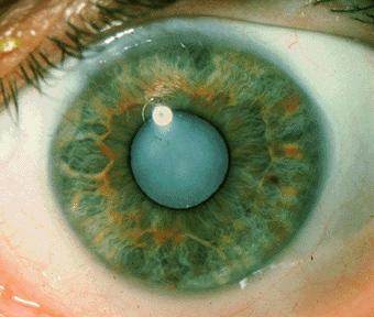 Cataract Surgery Honolulu